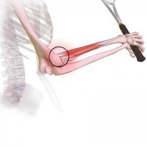 miejsce bólu